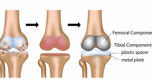 WHEN TO CONSIDER TOTAL KNEE REPLACEMENT